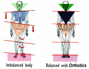 orthotics-body-images